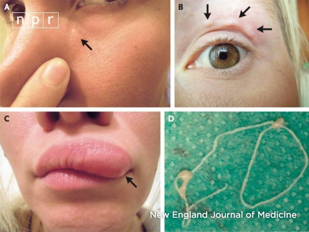 Аллергия на укус комаров (кулицидоз)