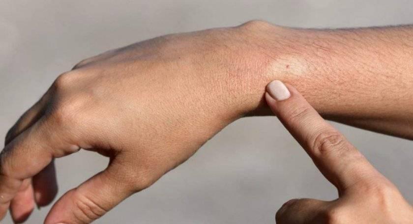 Когда укусила оса: симптомы, первая помощь, лечение