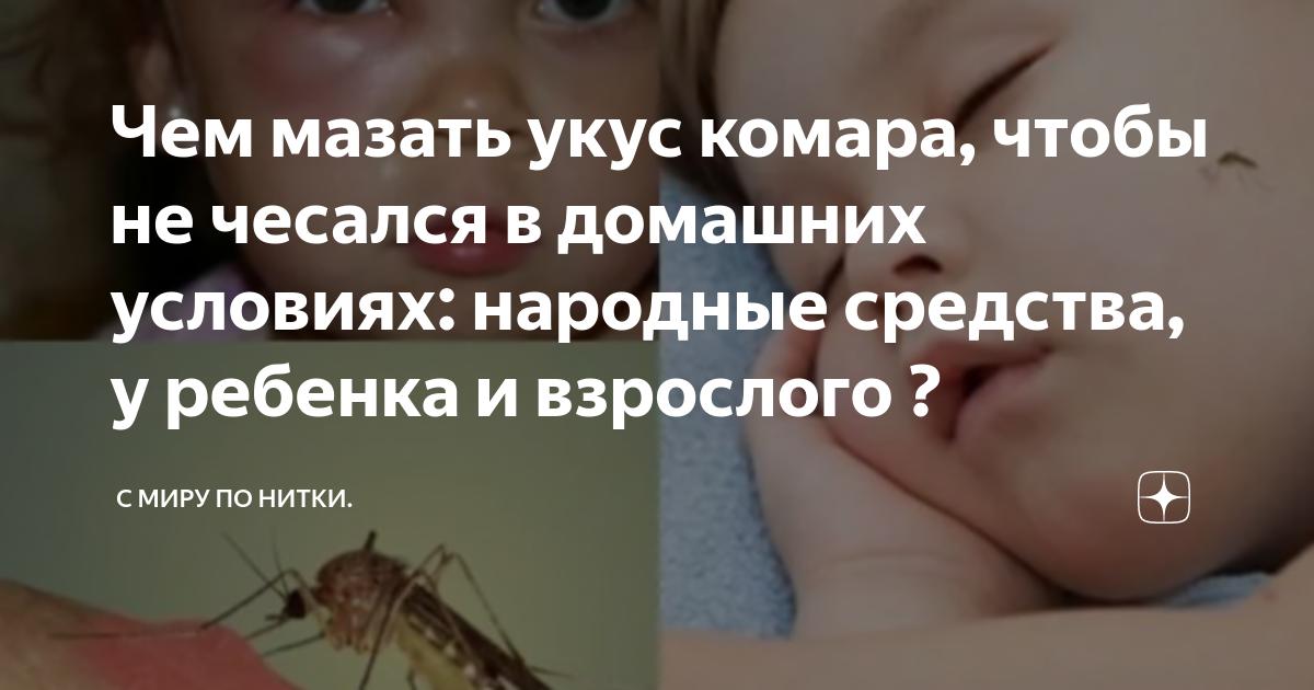 Что сделать, чтобы укусы комаров не чесались
