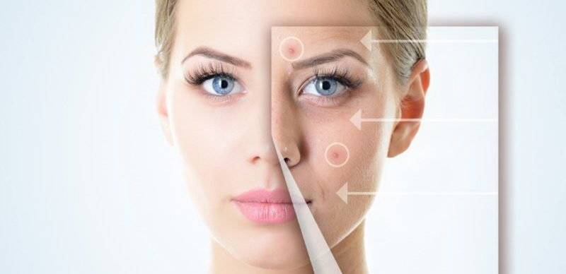 Демодекоз – лечение на глазах: как и чем лечить демодекс век и ресниц