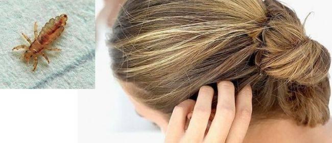 Есть ли у человека подкожные вши, почему они там живут и как их лечить?