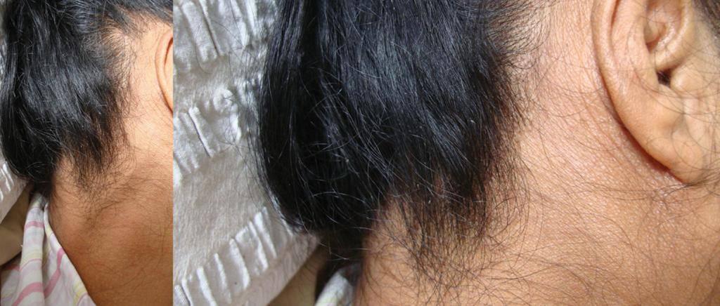 Симптомы присутствия подкожных вшей