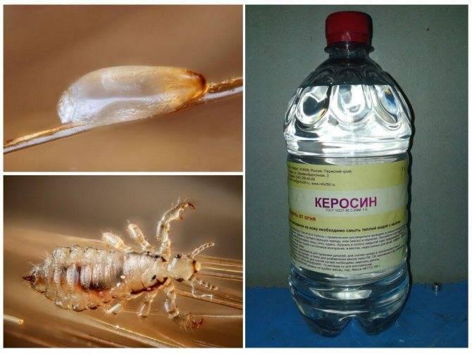 Керосин от вшей и гнид: эффективность и как использовать