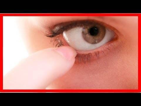 Клещ на ресницах: причины его появления и симптомы, лечение