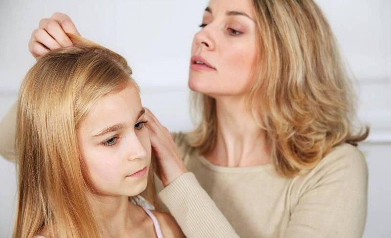 Самые эффективные способы избавления от вшей и гнид