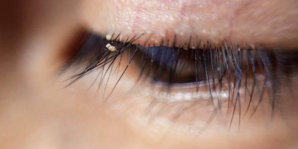 Как происходит заражение бельевыми вшами, икакие пути избавления отних существуют?