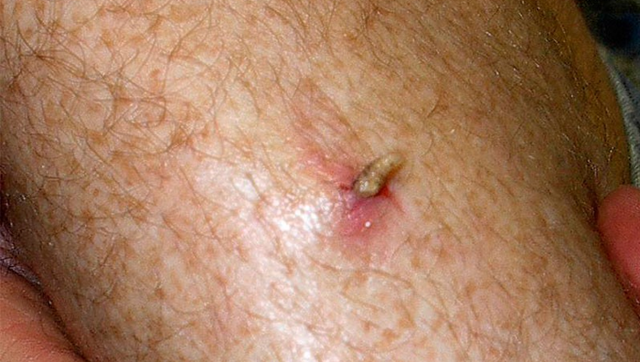 Муха, которая откладывает личинки под кожу человека