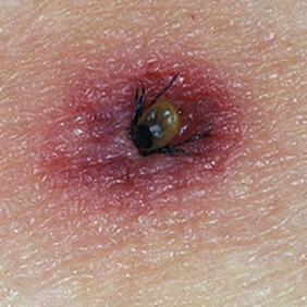 Как распознать укус клеща? советы врача