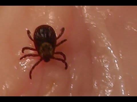 Можно ли заразиться и что делать, если клещ прополз по коже