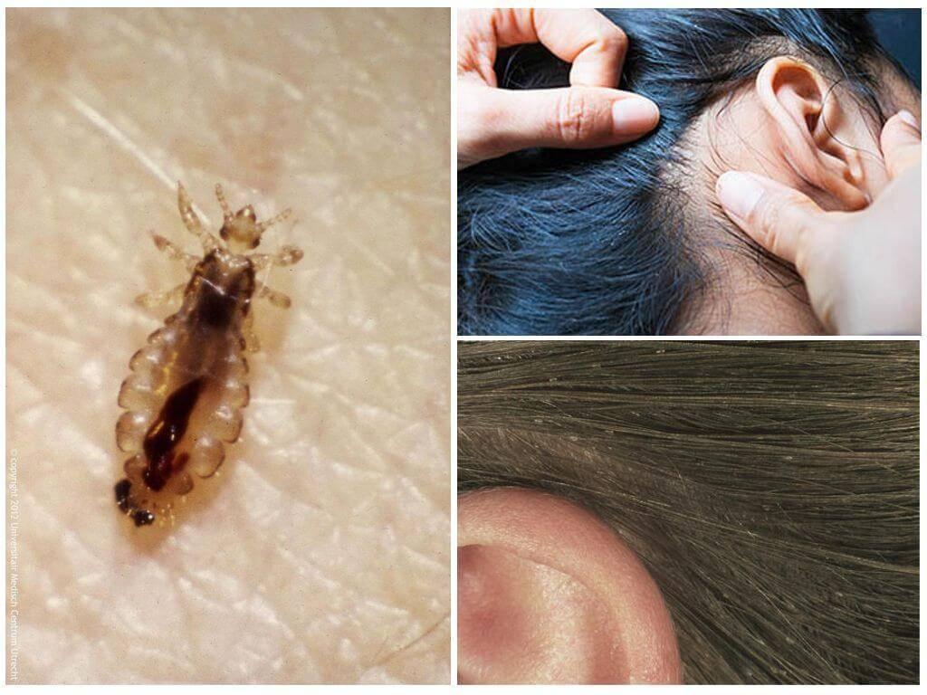 Какая температура необходима, чтобы погибли вши и гниды?