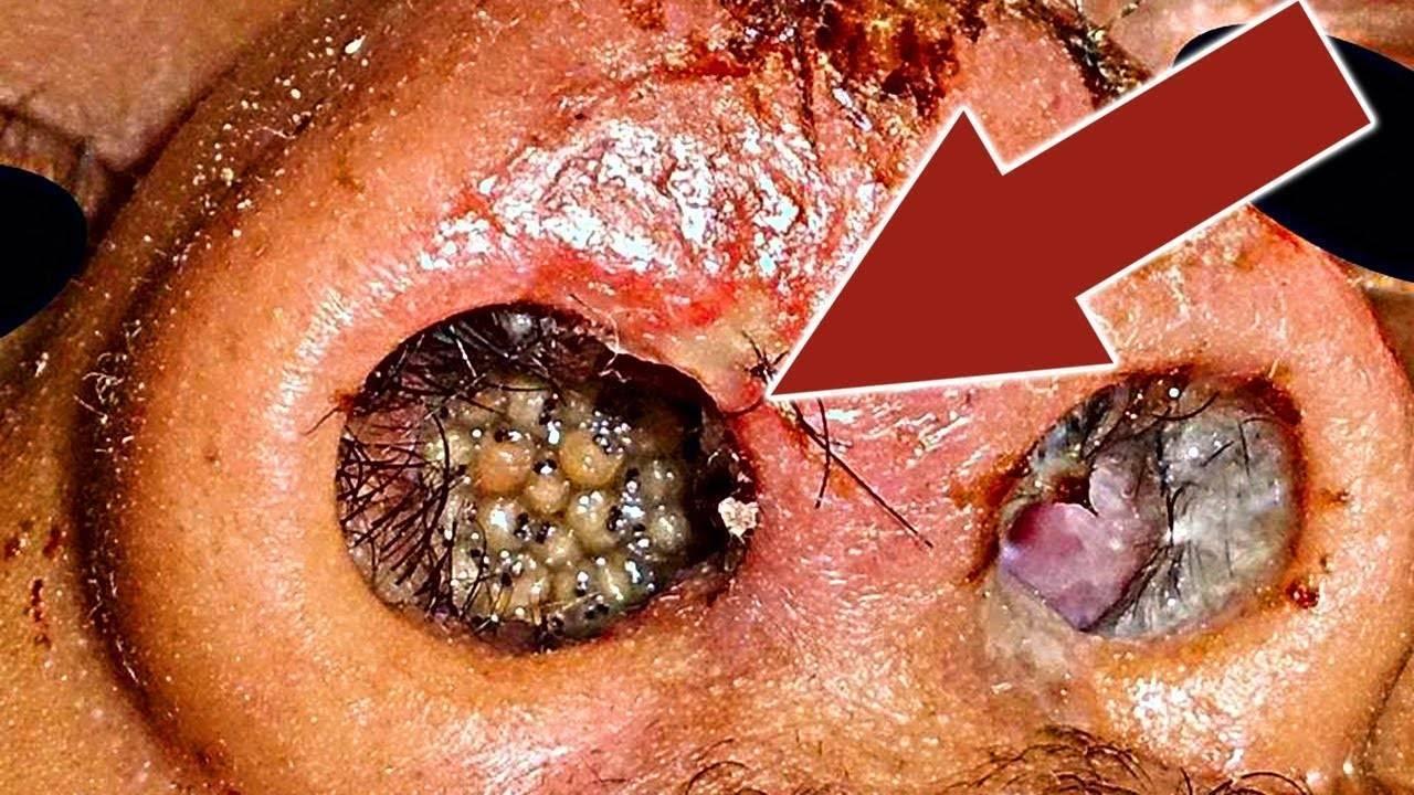 Опасные мухи. человеческая плоть для личинок - лучший деликатес. что будет, если съесть яйца или личинки мухи яйца мухи на продуктах