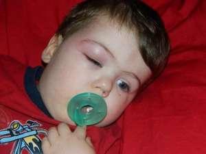 Мошка укусила в глаз — как снять отек и успокоить зуд