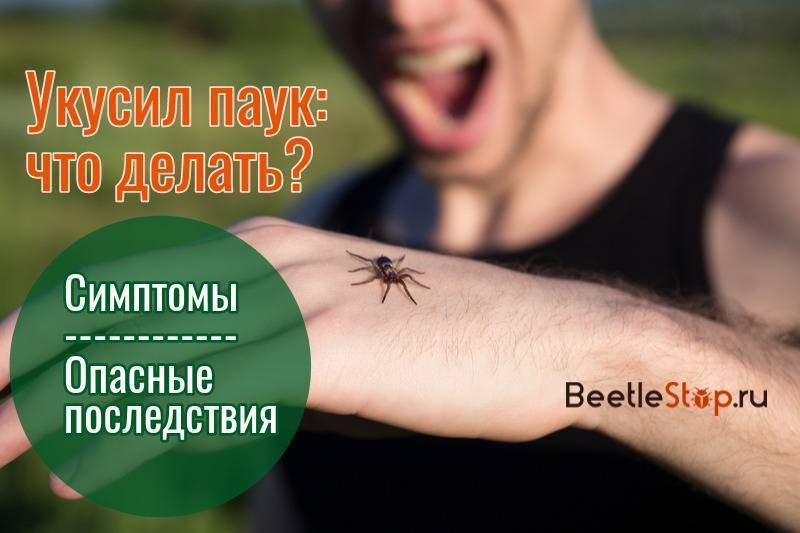 Ядовитые пауки и их укусы: что делать, как уберечь себя