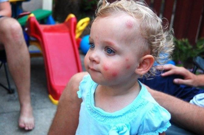 Чем помазать укус комара у ребенка: аптечные и народные средства