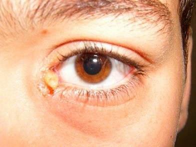 Слепни и оводы: чем они опасны для человека. личинки овода под кожей – что делать