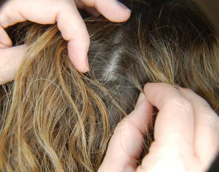 Способы выведения ресничных вшей