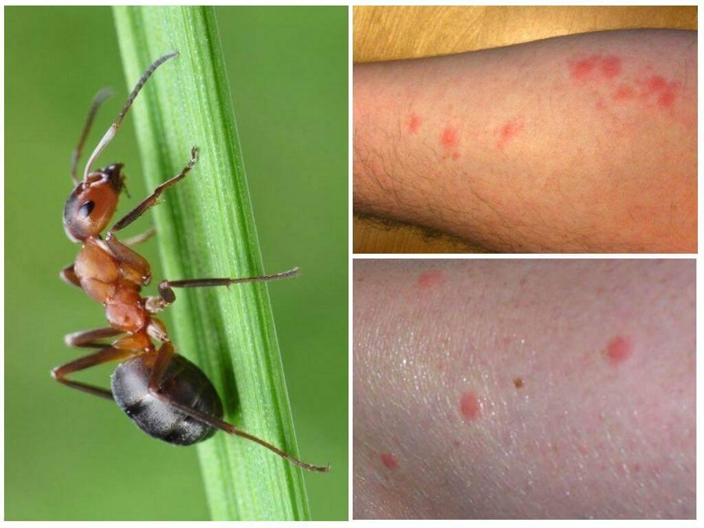 Чем опасны укусы муравьев и как их лечить?