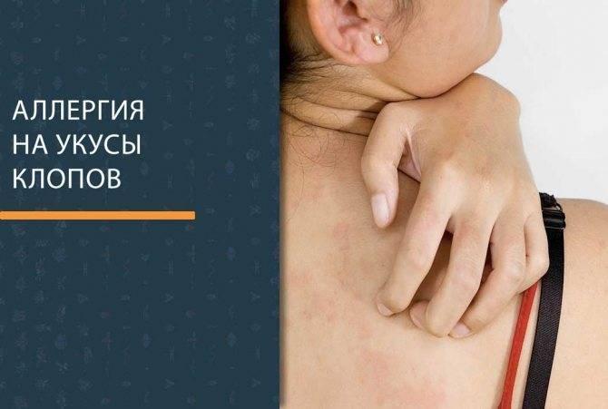 Аллергия на клопов – как реагирует организм на укусы у взрослых и детей – фото и лечение