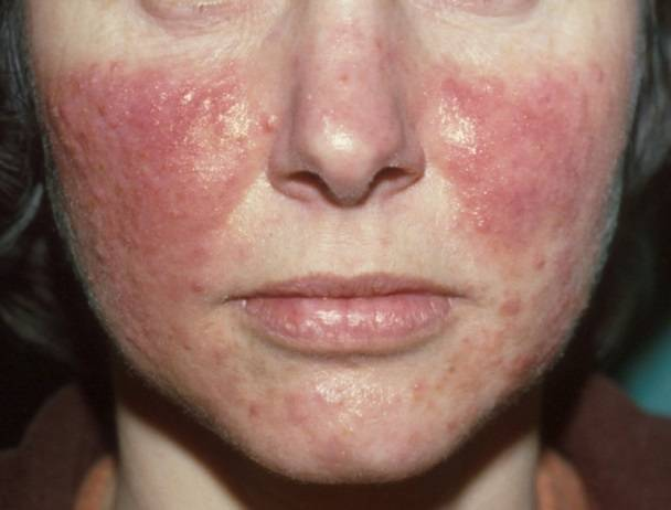 Лечение демодекоза на лице