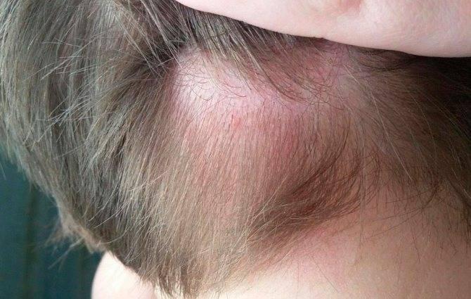 Симптомы и признаки вшей на голове