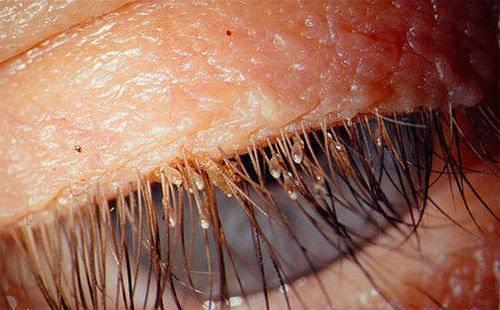 Могут ли появиться вши на нервной почве