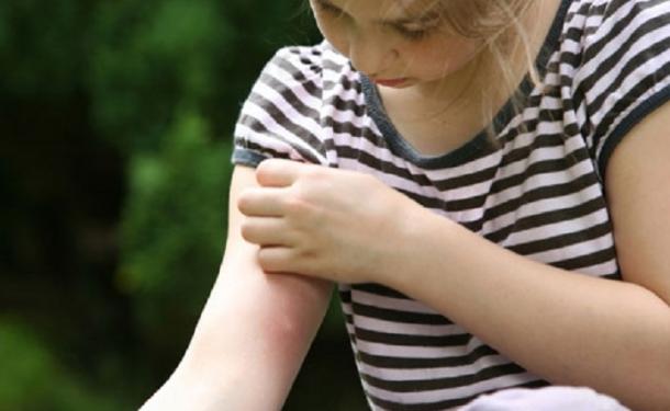Почему чешутся укусы комаров, и какими средствами можно защитить себя и детей?