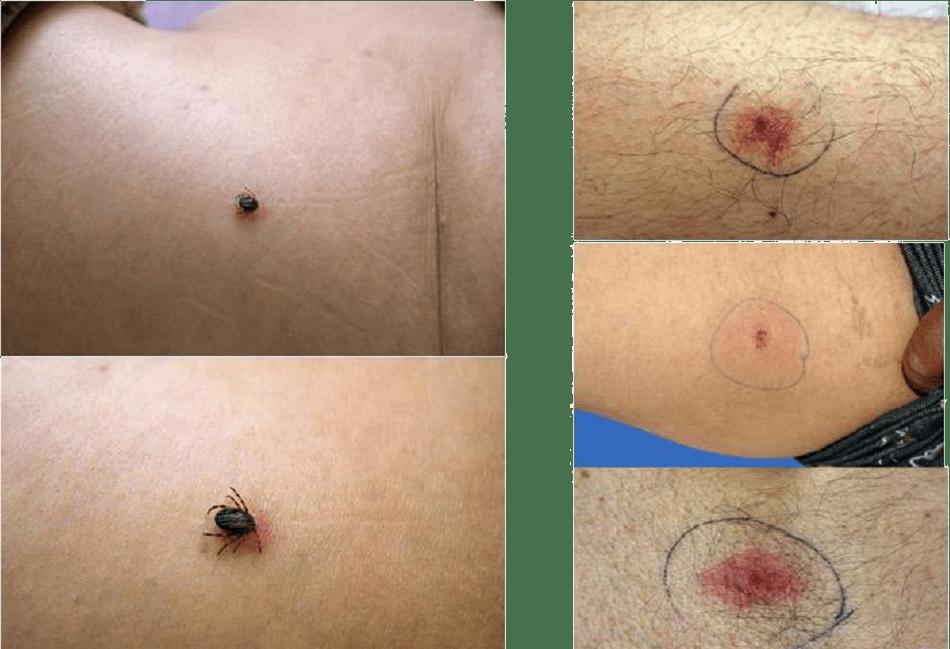 Какими могут быть симптомы укуса энцефалитного клеща у человека