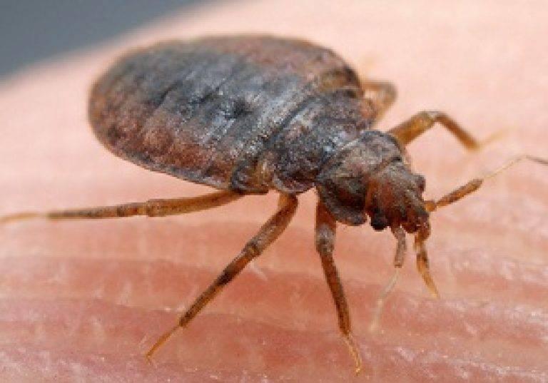 Чем снять зуд от укуса насекомых: мазь от укусов, народные средства