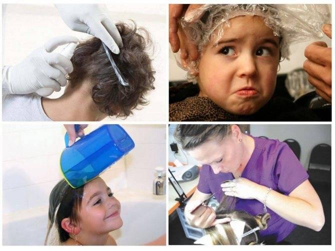 Обработка головы и белья при педикулезе