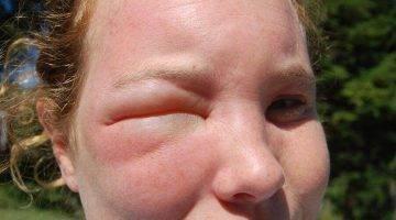 Укус мошки — лечение, снятие отёка
