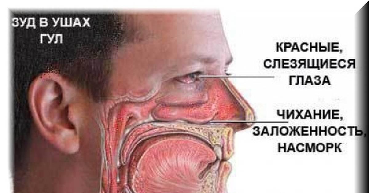 Что мы знаем об аллергии на пылевого клеща? симптомы и методы лечения