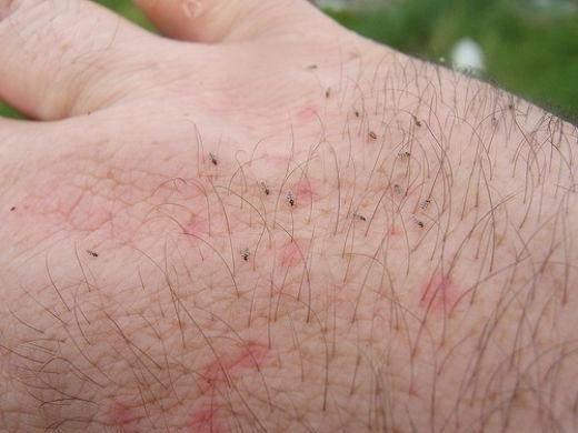 Мошки на даче: самые эффективные средства для борьбы с вредоносными насекомыми
