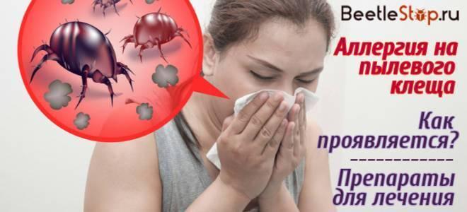 Пылевые клещи симптомы
