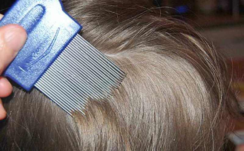 Советы по вычесыванию гнид из длинных и густых волос расческой