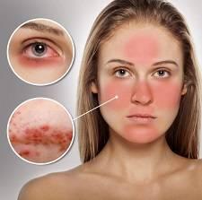 Демодекоз лица (клещ демодекс): лечение век и глаз, фото