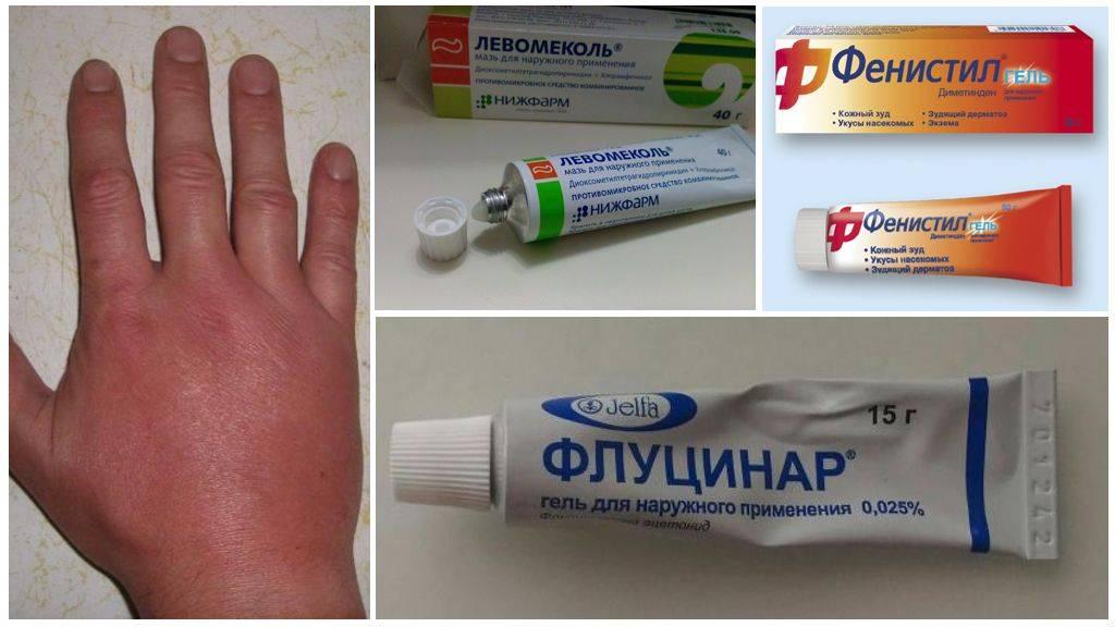Что делать при укусах комаров у детей