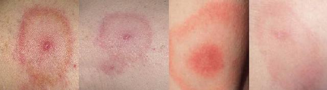 Клещевой боррелиоз — симптомы и последствия после укуса клеща