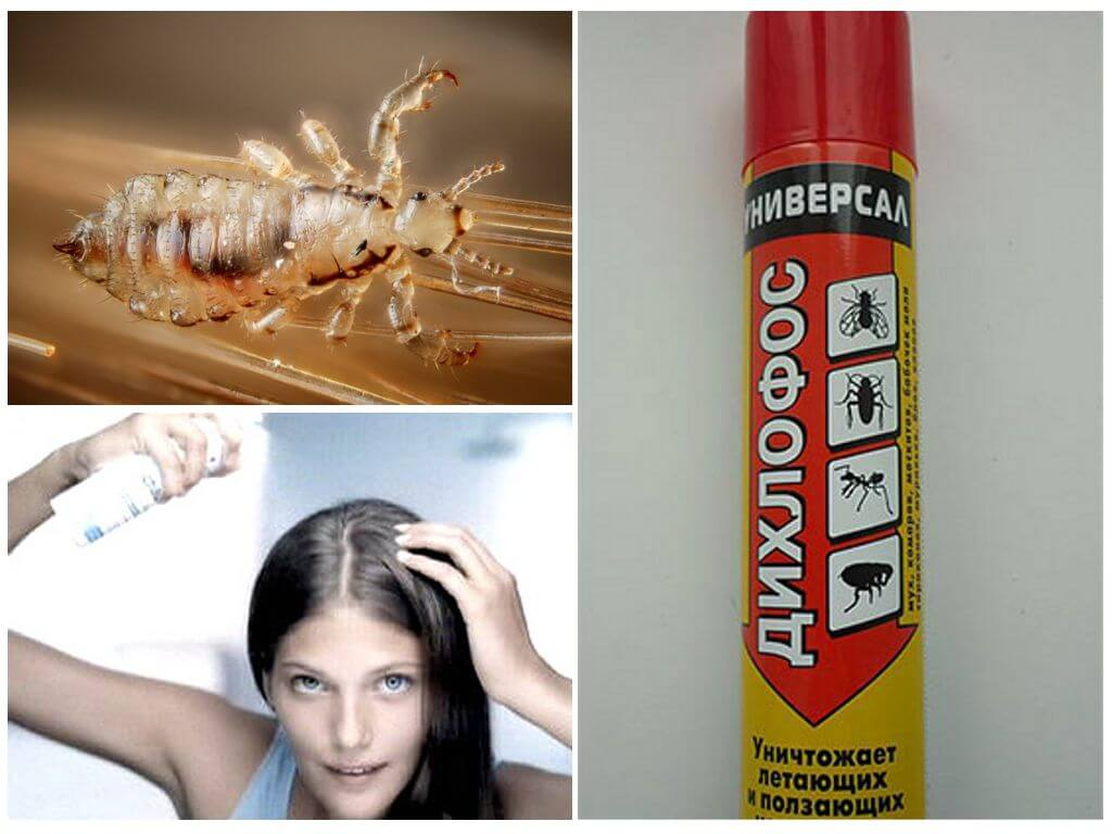 6 средств против вшей и гнид