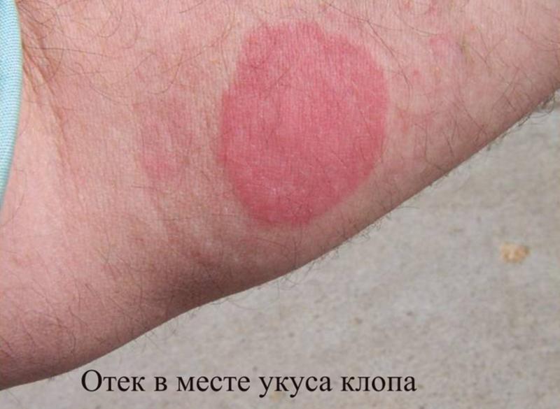 Симптомы аллергии на укусы клопов