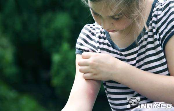 Первые признаки укусов малярийного комара, основные симптомы