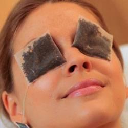 Мошка укусила в глаз: как снять опухоль и отек с глаза