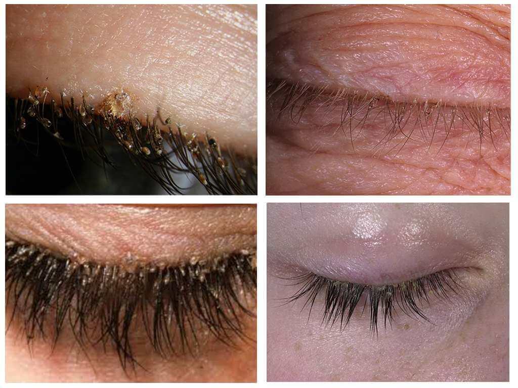 Лобковые вши: симптомы и лечение