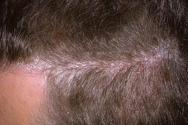 Какая связь между вшами и «нервной почвой»?