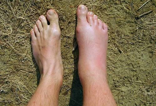 После укуса насекомого опухла нога: что делать и как снять опухоль