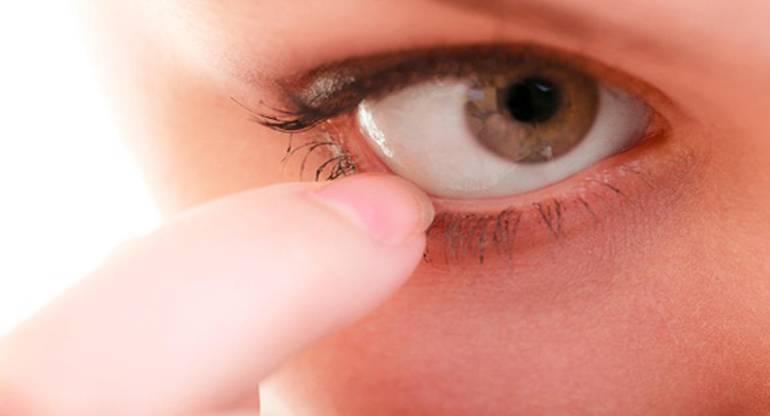 Укусила мошка в глаз – чем снять отек?