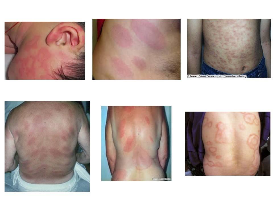 Болезнь лайма (клещевой боррелиоз): симптомы, лечение, фото