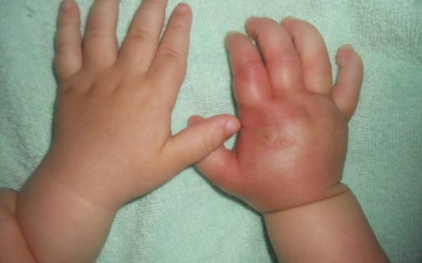Аллергия на укус мошки — быстрые и эффективные способы лечения