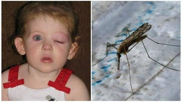 Лечение укусов комаров и мошки у детей