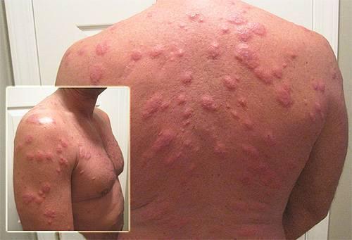 Как выглядят укусы клопа постельного на теле человека