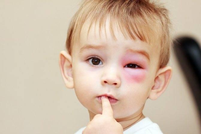 Средства для снятия отека и покраснения от укусов комаров у ребенка и взрослого
